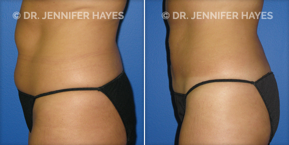 Lipo Before and After Gallery