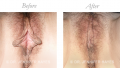 Reduction Labiaplasty / Clitoral Hood Reduction